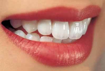北京康贝佳口腔整形科美白牙齿好吗 牙齿美白多少钱