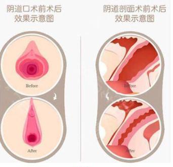 湘潭仁和医院医疗美容整形科阴道紧缩手术恢复时间