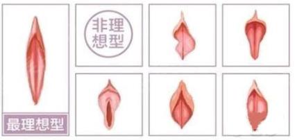 深圳西诺医疗整形美容医院阴唇整形什么时候效果