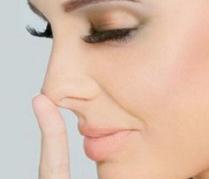 宿州美莱医疗整形美容医院延长鼻小柱手术适应人群