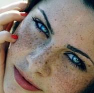 激光祛斑前能化妆吗 大连李耀宇医院激光祛斑会留下疤痕吗