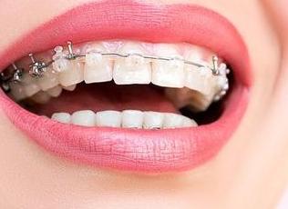 矫正牙齿要多少钱 重庆美维口腔医院矫正牙齿贵不贵