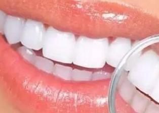 烤瓷牙掉瓷吗 重庆美奥口腔医院做烤瓷牙好不好