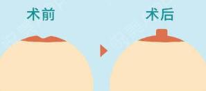 判断乳头内陷的程度 潍坊天宏医院乳头乳晕矫正手术过程