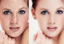 光子嫩肤的禁忌症 广安善美汇医院光子嫩肤能治疗雀斑吗