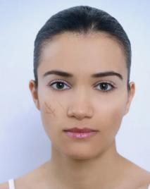 深圳南方激光美容专科医院激光<font color=red>祛疤</font>对皮肤有影响吗 安全吗