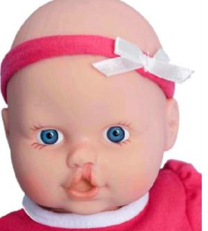 广州荔湾区人民医院整形科做兔唇修复安全吗 多大做