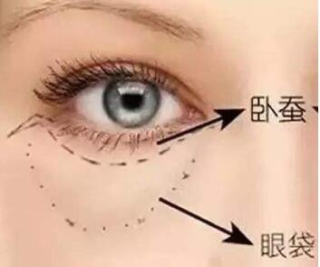 惠州凤凰女子整形医院激光去眼袋的效果怎么样