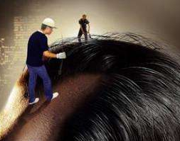 鬼剃头治疗方法有哪些 沈阳雍禾植发医院做头发种植怎么样