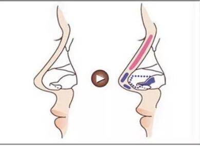 嘉兴秀洲华山整形医院鼻小柱延长手术的优势有哪些