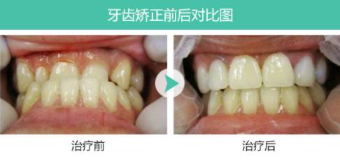 北京拜尔昊城口腔医院整形科牙齿矫正的年龄是多大