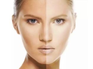 深圳广和整形医院激光美白嫩肤优势 效果能维持多久