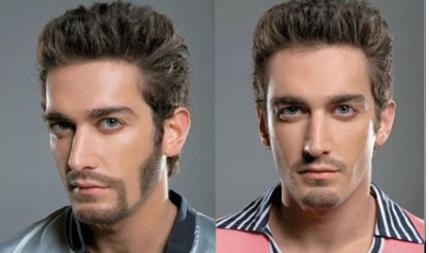 沈阳雍禾植发医院整形科胡须种植多少钱 性感胡须更有魅力