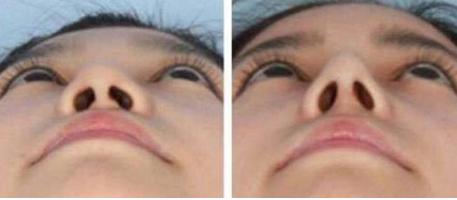 中山爱思特整形医院鼻子整形的费用 延长鼻小柱的优势