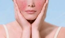 脸上有红血丝是敏感肌肤吗 徐州中医院激光治疗红血丝效果