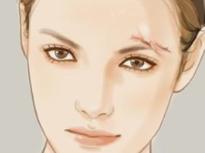 如何修复伤疤 大连艺星医院面部疤痕修复时间