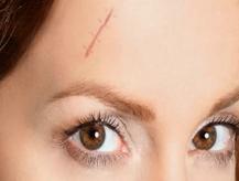 疤痕多久可以恢复 唐山金荣医院点阵激光<font color=red>祛疤</font>的禁忌症