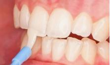 石家庄中诺口腔医院地包天矫正效果 别让颜值输在牙齿上