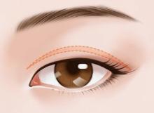 廊坊艾美整形医院不同的眼睛基础适合什么双眼皮手术方法