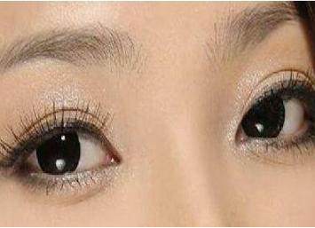 佛山亚韩整形医院激光去黑眼圈的优势 安不安全呢