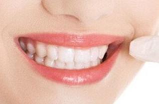 上海美奥口腔门诊部种植牙过程 种植牙怎样护理