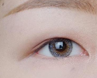 大庆蓝天整形医院做韩式三点双眼皮手术能保持多久