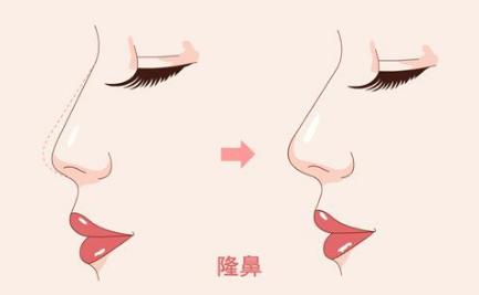 隆鼻前后对比图片 淮北时光整形假体隆鼻多少钱