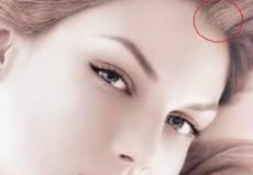 南京科发源植发医院美人尖发际线种植以后多久会看到效果
