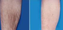 徐州整形医院腿部激光脱毛要进行几次才能永久消除