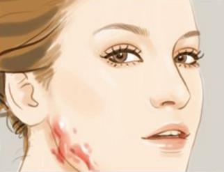 昆明艺星整形医院去疤痕的方法 激光祛疤多少钱