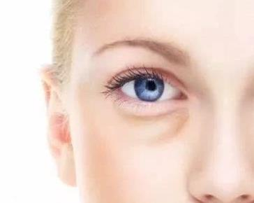 青岛华韩整形医院吸脂去眼袋的优点 吸脂去眼袋适合那些人