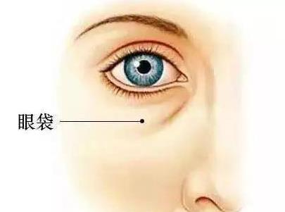 临汾丽都整形医院激光祛眼袋效果 激光去眼袋有后遗症吗