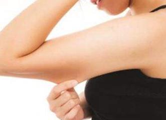 手臂吸脂手术安全性如何 长春中妍整形医院手臂吸脂疼吗