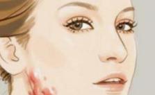 疤痕体质是什么 成都铜雀台整形医院疤痕体质如何祛疤