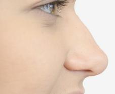 大庆志富整形医院延长鼻小柱的材料 雕刻精致鼻型