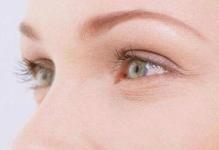 四川成都华人医联整形医院双眼皮修复手术 把握修复时机