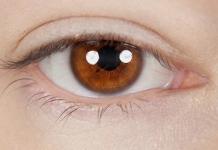 成都成美整形医院双眼皮修复的条件是什么 让美丽近在眼前