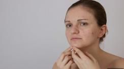 别让疤痕拉低颜值 济南丽容整形医院激光祛疤手术优势
