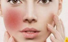 烟台韩东均整形医院激光去红血丝优点 修复皮肤更加美丽