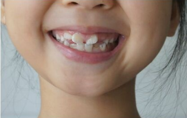 郑州市牙科医院哪家好 牙齿矫正什么年龄比较好