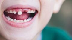 北京三叶儿童口腔诊所牙齿矫正优势 有年龄限制吗