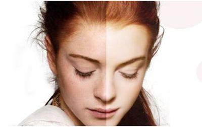 临沂咖美整形光子祛斑怎么样 轻松扫除面部斑斑点点