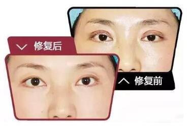 北京双眼皮修复哪家好 北京博美整形医院双眼皮修复优势