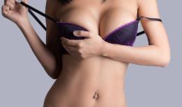 南京芬迪整形医院乳房下垂矫正手术方式 抵抗地心引力