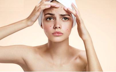 激光去除痘印多少钱 去除痘印让肌肤光滑细致