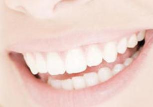 安徽合肥贝杰口腔牙齿美容冠 让你的牙齿整齐又洁白