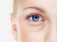 宁波尚丽整形医院激光去眼袋优势 绽放魅力电眼
