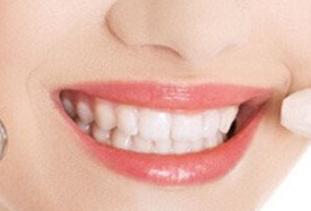 纠正牙齿要多少钱 北京瑞康口腔门诊部矫正牙齿需要先拔牙