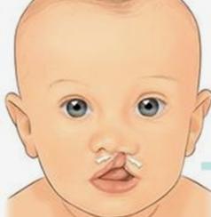 许昌丽娜整形医院唇腭裂修复贵不贵 手术安全吗