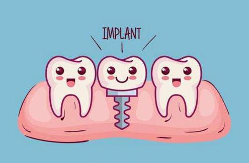 种植牙有没有副作用 沈阳种植牙价格贵吗